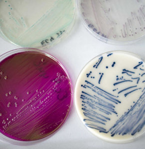 Bakteriye en küçük kurban
