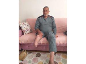 Protez bacak için yardım bekliyor