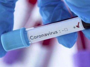 Korona virüs şüphesi numuneleri Erzurum'a gönderilecek