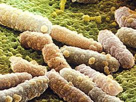 Fransa'da bir E.coli vakası daha