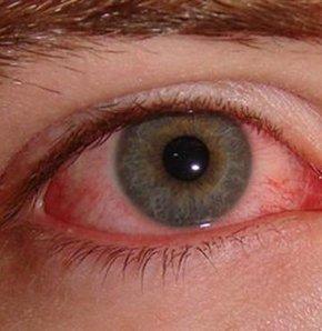 Kırmızı göz kâbusu dönebilir!